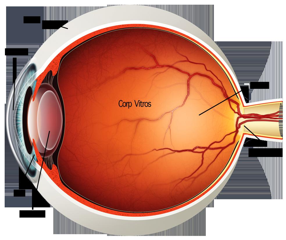 vedere slabă legată de vârstă plasture pentru ochi de miopie